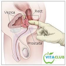 Panel PreSENTIA - cancer ereditar de prostată (15 gene)
